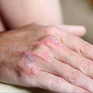 Ciclo di cura di eczema