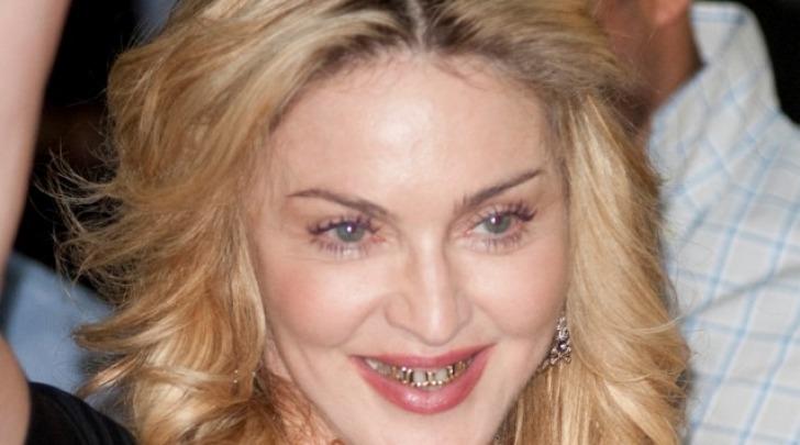 apparecchio ortodentale Madonna