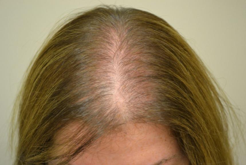 alopecia femminile giovanile