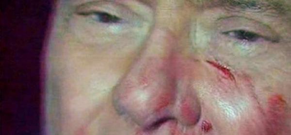 Silvio Berlusconi ferito da Massimo Tartaglia
