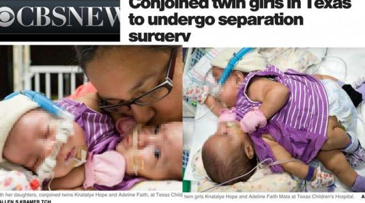 Knatalye Hope e Adeline Faith Mata, le gemelline siamesi salvate (CbsNews)